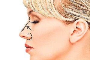 Boom della chirurgia plastica del naso